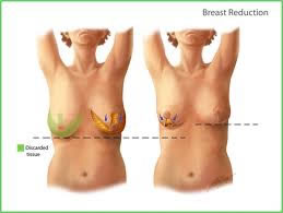 breastreduction
